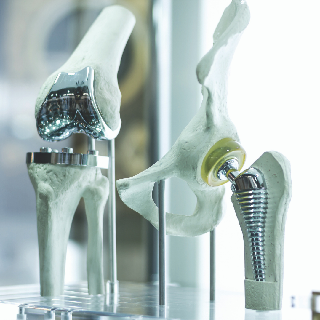 Total Joint Replacement Advances